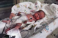 Picture of a newborn in the neonatal intensive care unit