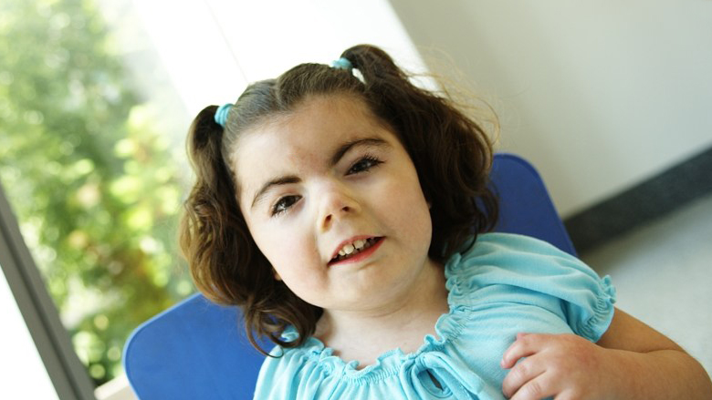 Center for Cornelia de Lange Syndrome and Related Diagnoses ...