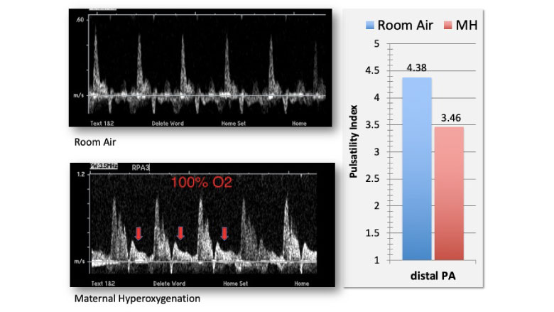 Doppler spectral display of blood flow in the right pulmonary artery under room air (top panel) and under conditions of 15 minutes of maternal hyperoxygenation (bottom panel).
