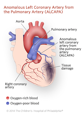 Anomalous Left Coronary Artery From the Pulmonary Artery Illustration