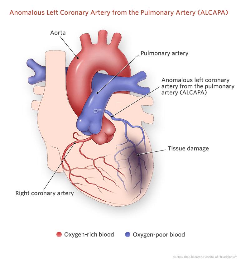 Anomalous left coronary artery from the pulmonary artery anomalous left coronary artery from the pulmonary artery illustration ccuart Choice Image