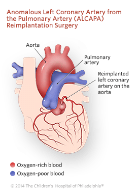 Anomalous Left Coronary Artery From the Pulmonary Artery Reimplantation Surgery Illustration