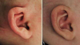 Patient ear molding before and after right view