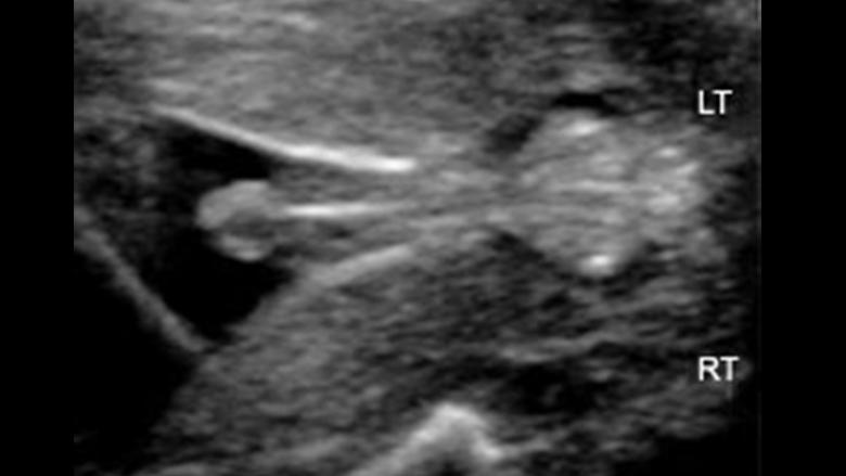 Physiotherapist David Fraser Case study Ultrasound Imaging