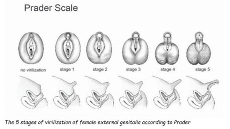 Prader Scale - Figure 1
