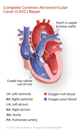Complete Common Atrioventricular Canal Repair Illustration
