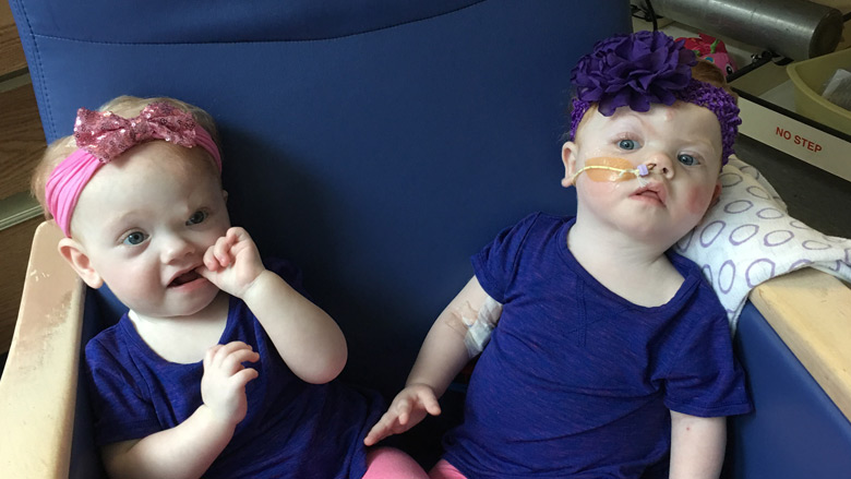 Delaney twins sitting together post separation on a chair