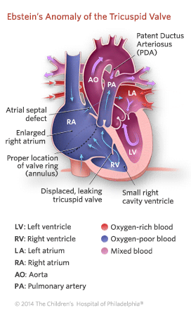 Ebstein's Anomaly of the Tricuspid Valve Illustration
