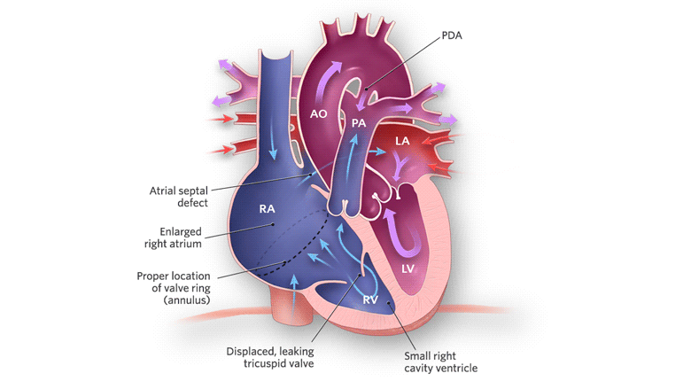 Ebsteins Anomaly Of The Tricuspid Valve Childrens Hospital Of