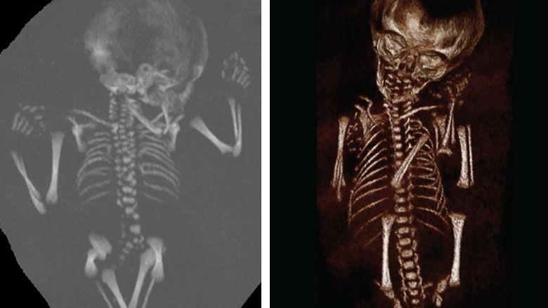 Fetal CT Imaging