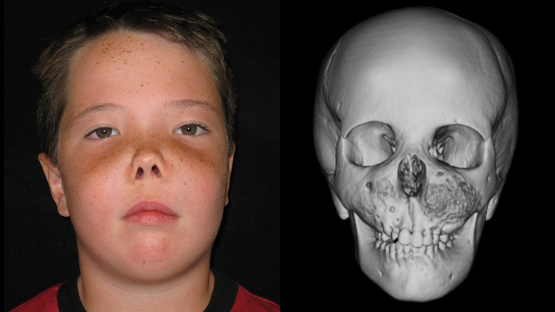 Patient with fibrous dysplasia