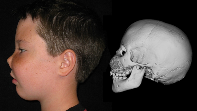 Patient with fibrous dysplasia side view