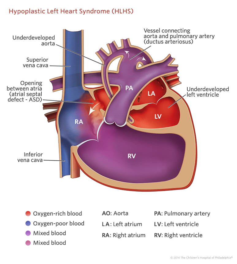 Hypoplastic left heart syndrome hlhs childrens hospital of hypoplastic left heart syndrome illustration ccuart Images