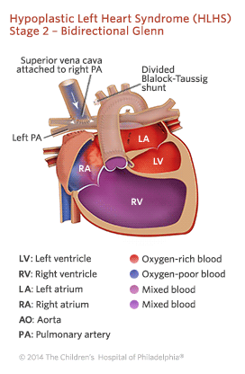 Hypoplastic Left Heart Syndrome Stage 2 Repair Illustration