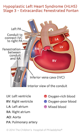Hypoplastic Left Heart Syndrome Stage 3 Repair Illustration