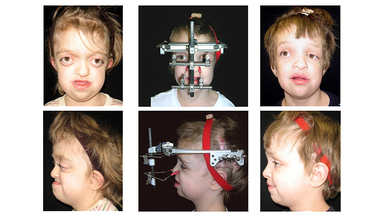 Le Fort III and Monobloc Advancement treated by Distraction Osteogenesis