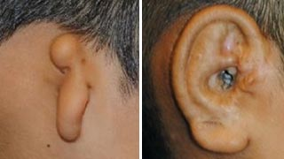 Patient ear molding before and after left view