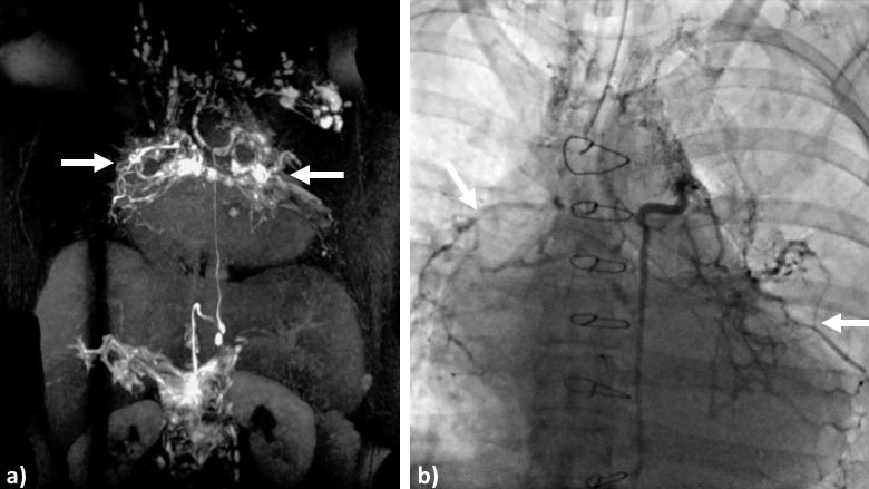 Magnetic Resonance Lymphangiography