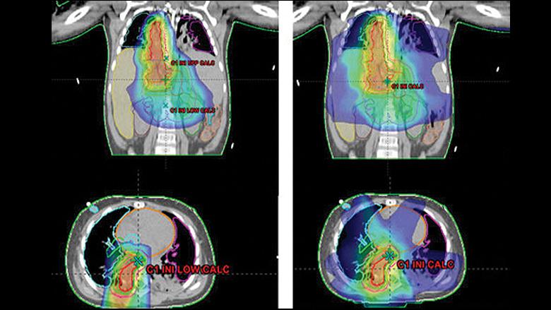 radiation treatment plans