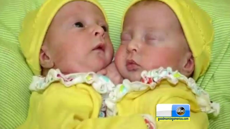 conjoined infant twins