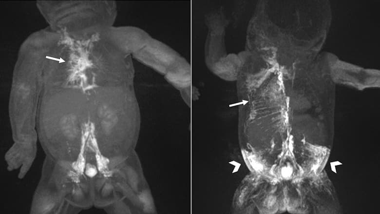 MRIs showing dynamic contrast MR lymphangiography (DCMRL) in neonatal chylothorax and CLFD
