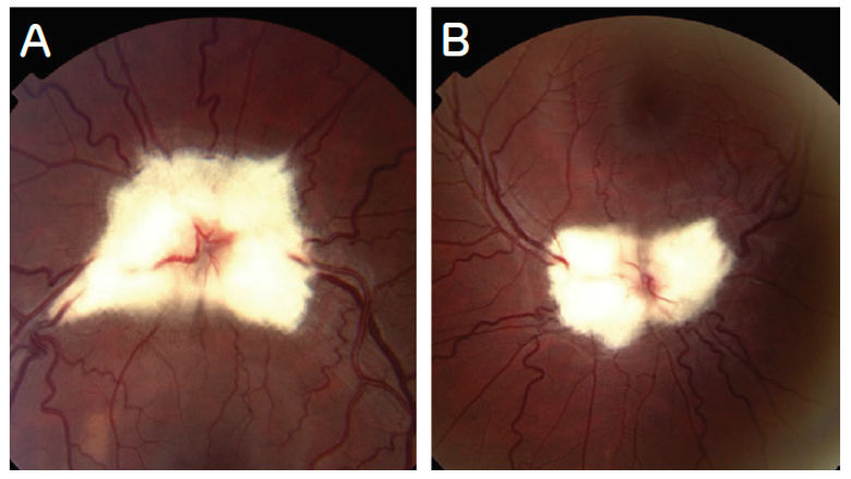 Images of optic nerve heads and vessels