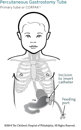 Percutaneous Gastrostomy Feeding Tube Placement | Children ...