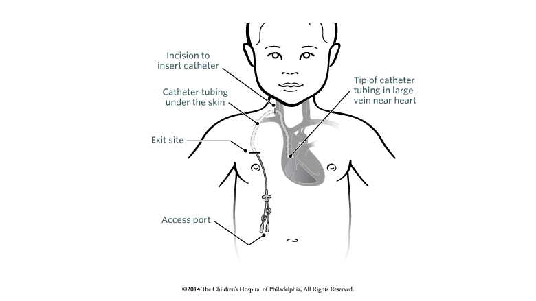 Tunneled Catheter Placement | Children\'s Hospital of Philadelphia