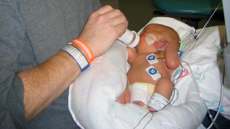 Postnatal Surgery for Sacrococcygeal Teratoma (SCT) | Children's ...