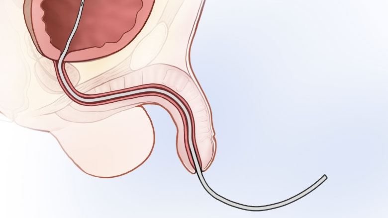 Catheter depiction