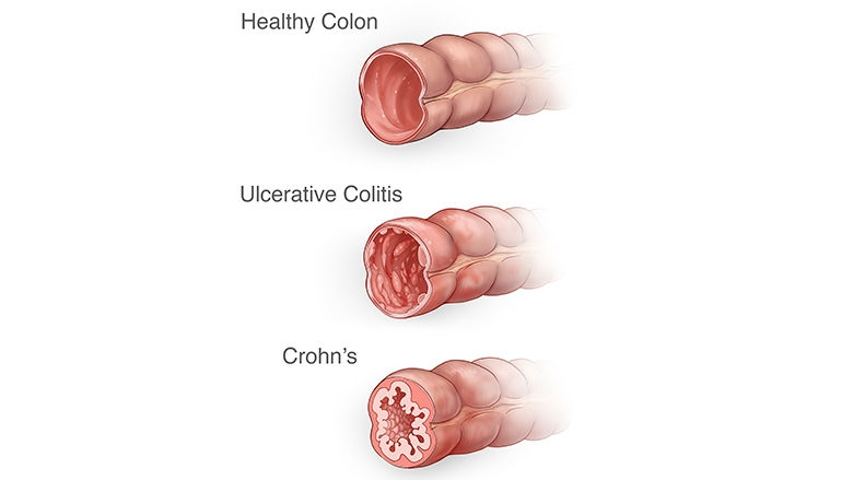 Cross sections of the colon illustration