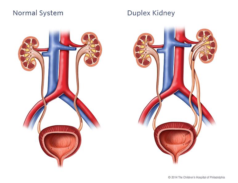 Duplex Kidney | Children's Hospital of Philadelphia
