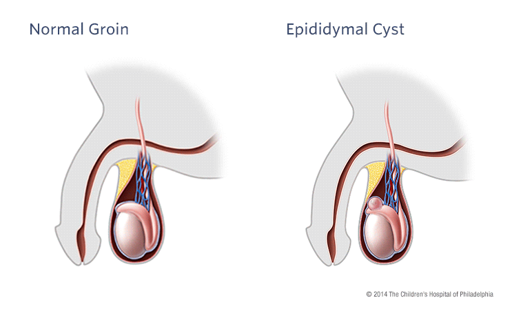 Epididymal Cyst and Spermatocele | Children's Hospital of Philadelphia