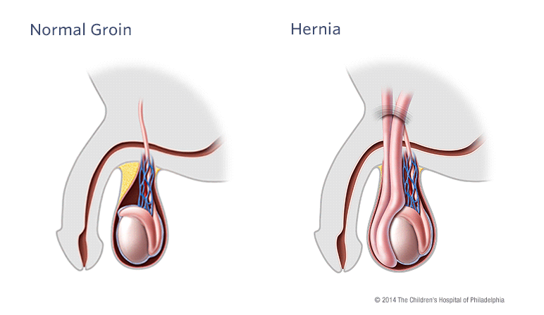 Hydrocele and Hernia Illustration