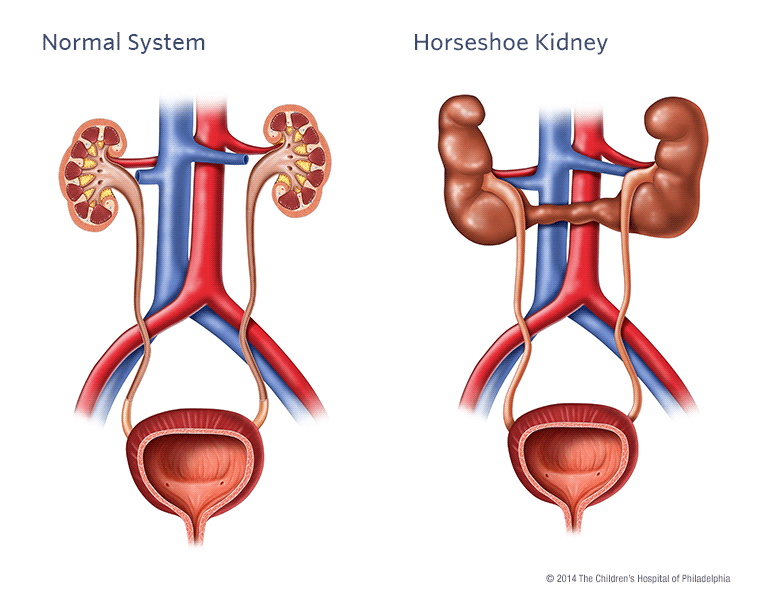 Horseshoe Kidney