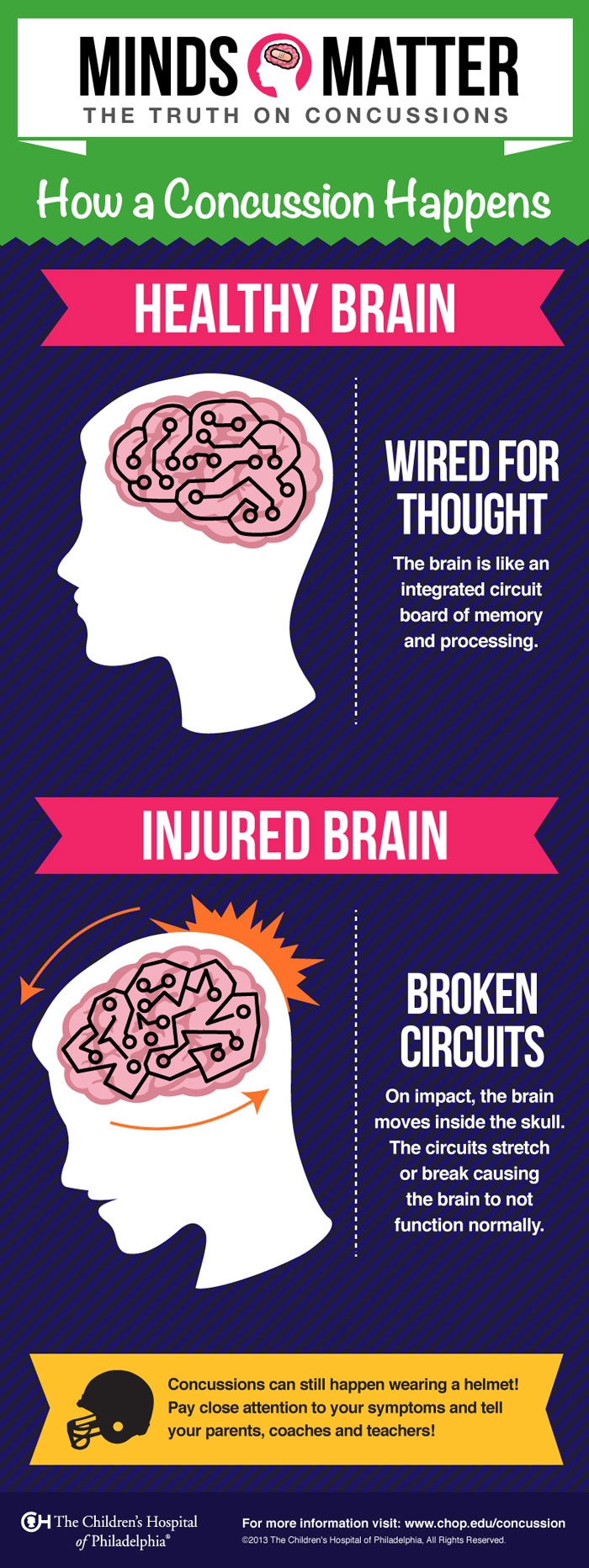how concussion happens infographic