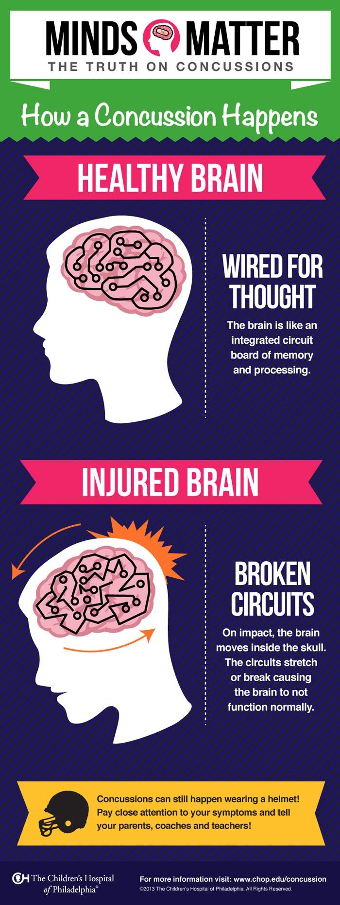 How a Concussion Happens | Children's Hospital of Philadelphia