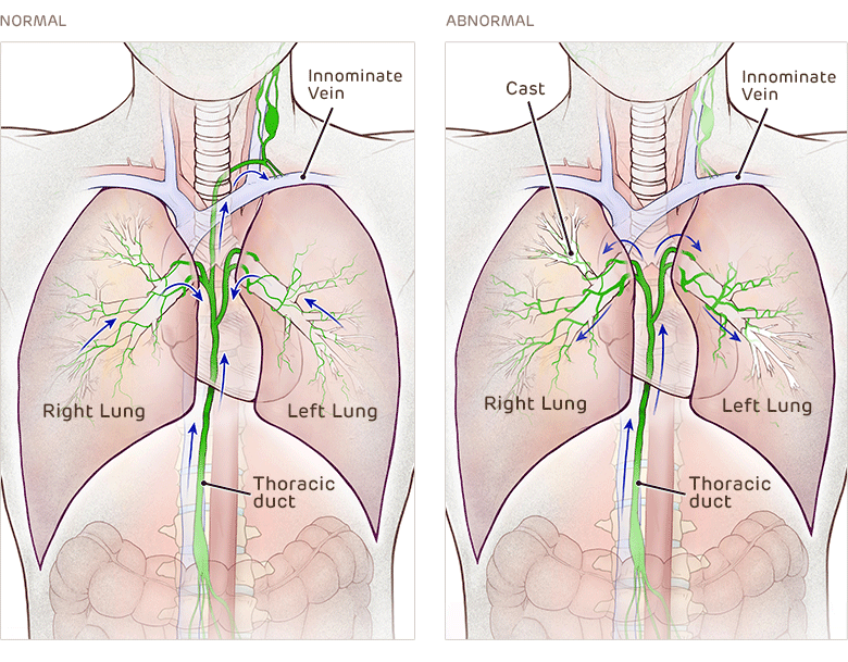 Normal and Abnormal Lymphatic System - Plastic Bronchitis