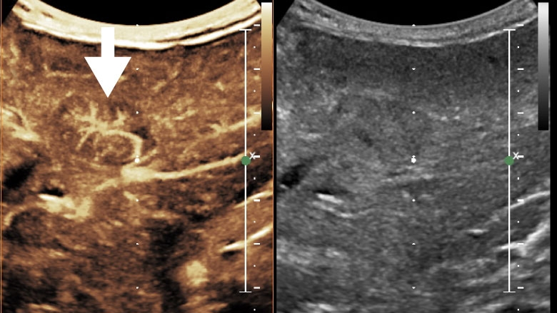 Contrast-enhanced ultrasound (CEUS) of the liver demonstrating a spoke-wheel arterial pattern in the lesion compatible with a focal nodular hyperplasia.