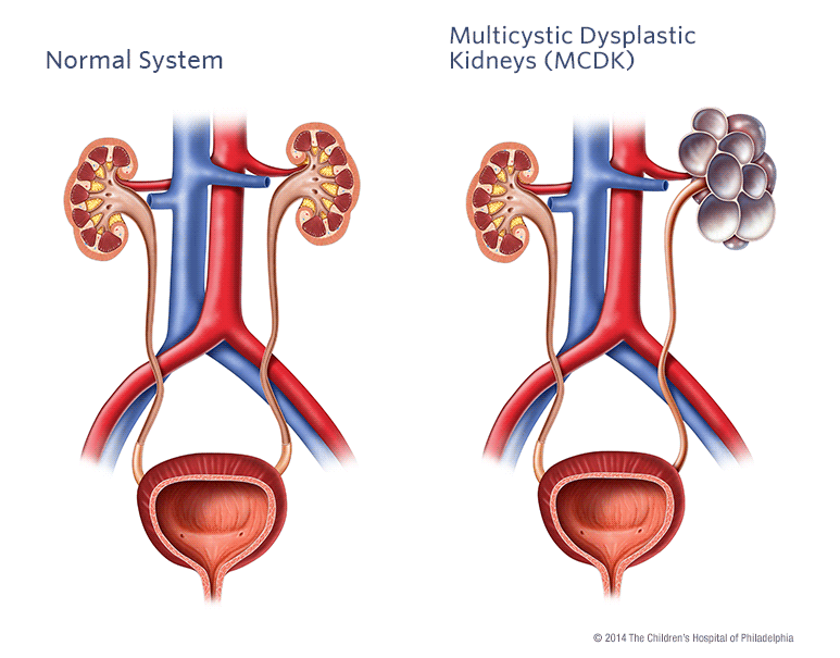Multicystic Dysplastic Kidney Childrens Hospital Of Philadelphia
