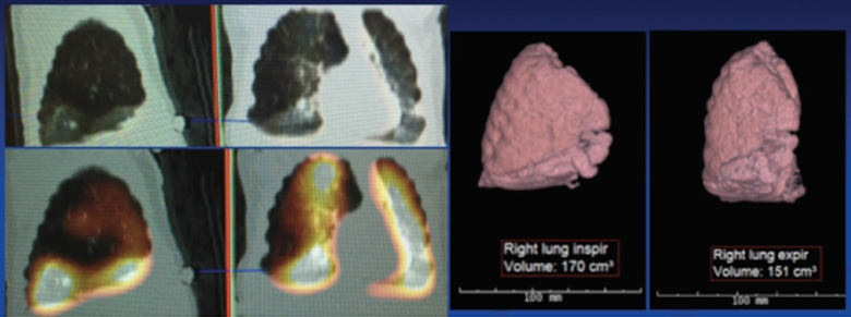 Nuclear Perfusion Scan and CT Angiogram with 3-D Reconstruction of Right Lung