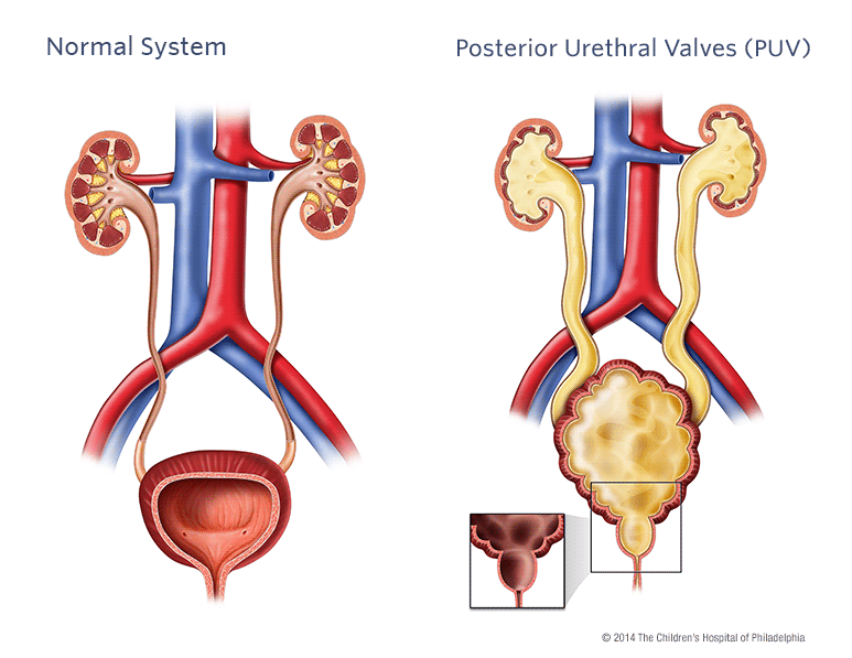 Posterior Urethral Valves Puv Childrens Hospital Of