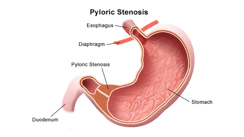pyloric stenosis illustration