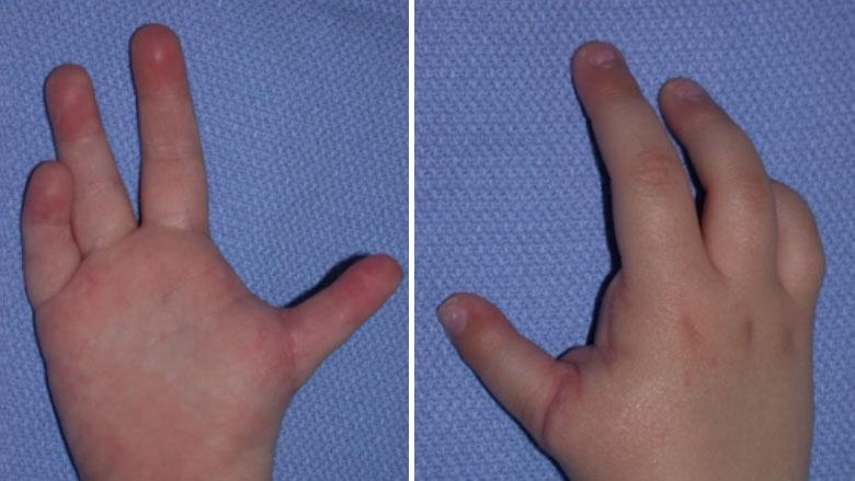 hypoplastic thumb classification