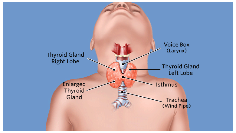 About Hyperthyroidism (Graves' disease) | The Children's ...