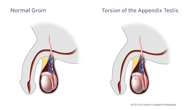 torsion of the appendix testis and appendix epididymis, Human Body