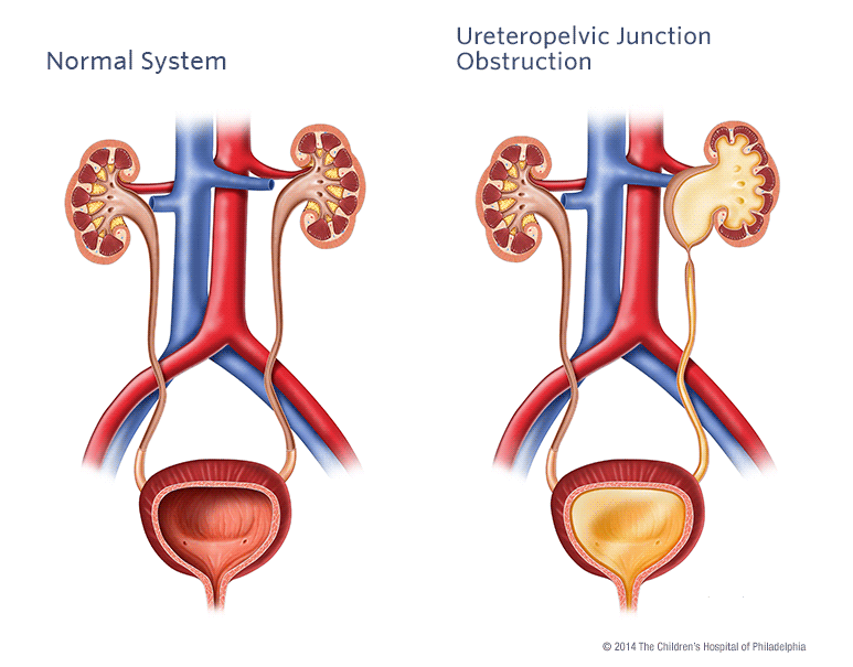 Ureteropelvic Junction Illustration