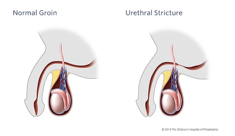 Stretch my urethra for urethral dilator