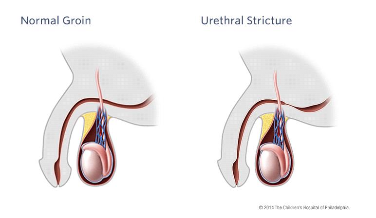 Urethral Stricture Childrens Hospital Of Philadelphia