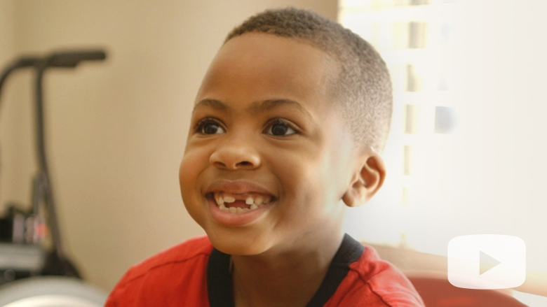 Zion, the World's First Child to Receive a Bilateral Hand Transplant